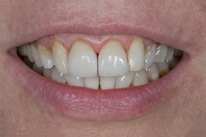 Mary Veneers & Orthodontics S B4 5454