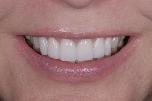 Mary Veneers & Orthodontics S Post 6555