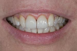 Mary Veneers & Orthodontics S B4 5454