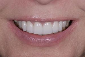 Mary Veneers & Orthodontics S Post 6555