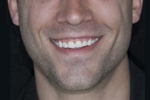 Matt Gummy Smile F B4 2 copy