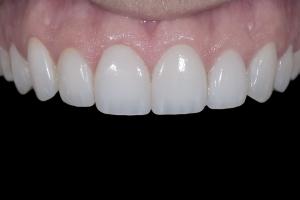 Matt-Gummy-Smile-X121-Post-4347