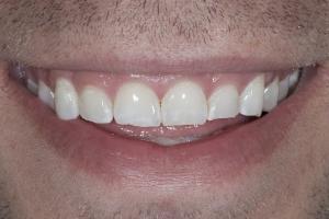 Matt Gummy Smile S B4 8581