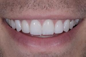 Matt Gummy Smile S Post 1441