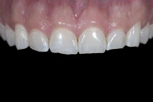 Matt Gummy Smile X121 B41 8587