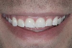 Matt Veneers & Gum Lift S B4 8581