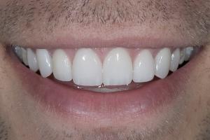 Matt Veneers & Gum Lift S Post 1441