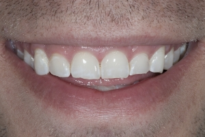 Matt Veneers & Gum Lift S B4 8581