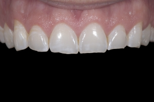 Matt Veneers & Gum Lift X121 B42 0140