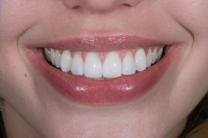 Megan S Composite Veneers After 8954