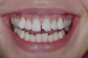 Megan S Composite Veneers  Before 5204