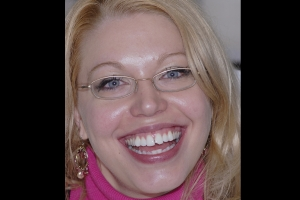 Megan-F-Composite-Veneers-Before-5199