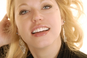 Megan-F-Composite-Veneers-After-9053