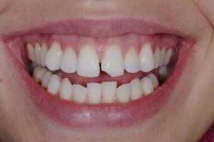 Megan Instant Orthodontics S b4 5204