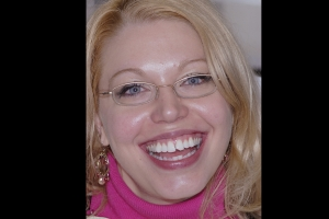 Megan Instant Orthodontics F B4 5199