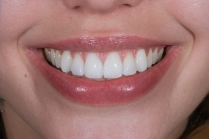 Megan Instant Orthodontics S Post 8954 Rotate