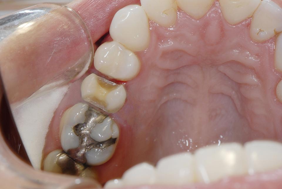Molar Crowns Back Teeth - Advanced Cosmetic Dentistry