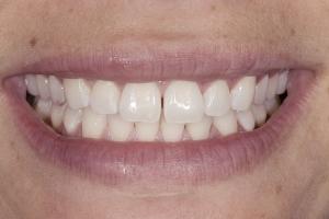Melissa Teeth Whitening S B4 0104