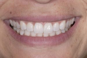 Melissa Teeth Whitening S Post 0077