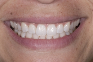Melissa Invisalign S Post 0077