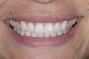 Melissa S Diastema After 0077