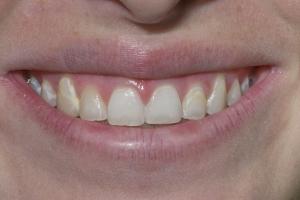 Mercy Veneers & Gum Lift S B4 0975