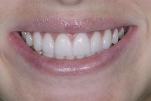 Mercy Veneers & Gum Lift S Post 2642