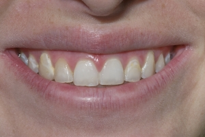 Mercy Veneers & Gum Lift S B4 0975