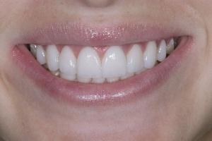 Mercy Gummy Smile S Post 2642