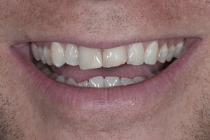 Michael Veneers & Orthodontics S B4 7145