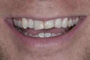 Michael Veneers & Orthodontics S B4 7145