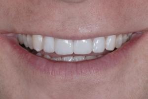 Michael Veneers & Orthodontics S Post 8858