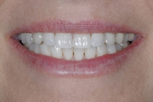 Michelle2  Implant Crown S After 6022