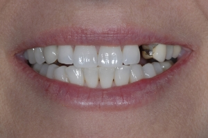 Michelle2  Implant Crown S  Before 6021