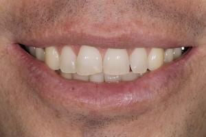 Mike Teeth Whitening S B4 169