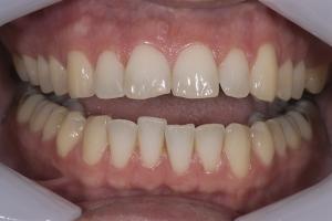 Mike Teeth Whitening R B4 175