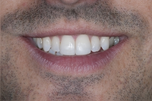 Milan Invisalign S Post 0145