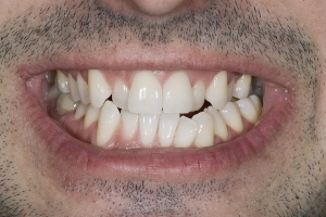 Milan Clear Tray Aligners S1