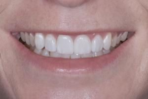 Noelle Instant Orthodontics S Post 9910 (1)