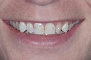 Noelle Instant Orthodontics S B4 9364 (1)