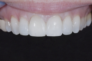 Mona-Veneers-As-Retainers-X4-0258