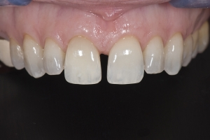 Mona-Veneers-As-Retainers-X1-0026