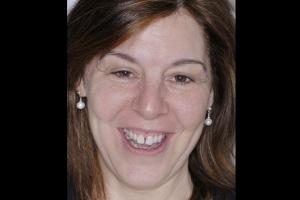 Mona Veneers & Orthodontics F  Before 031