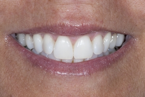 Monica S Crowns Back Teeth After 7188