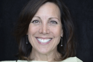 Monica F Crowns Back Teeth  Before 9519
