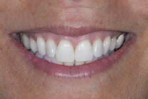 Monica S Crowns Back Teeth  Before 6941