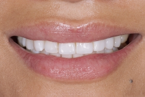Mylin Implant Crown S Post 0028