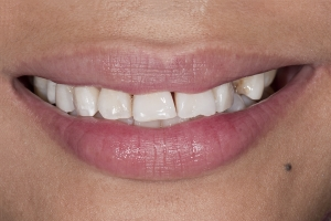Mylin Clear Aligners S B4