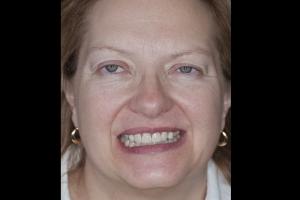 Nancy Veneers & Gum Lift F  Before 4942