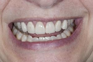 Nancy Veneers & Gum Lift S B4 4929
